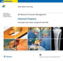 AO Manual of Fracture Management: Internal Fixators